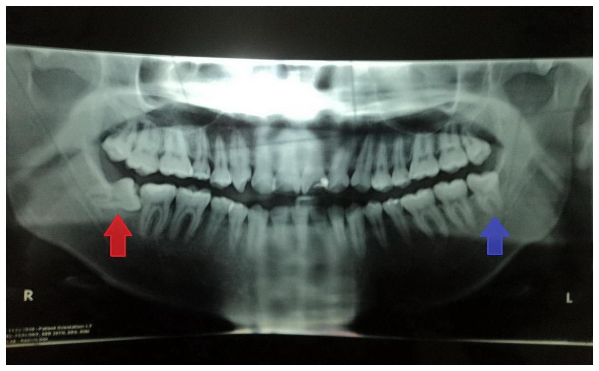Pengalaman Operasi Gigi Bungsu